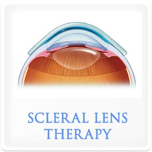 Scleral Lenses.