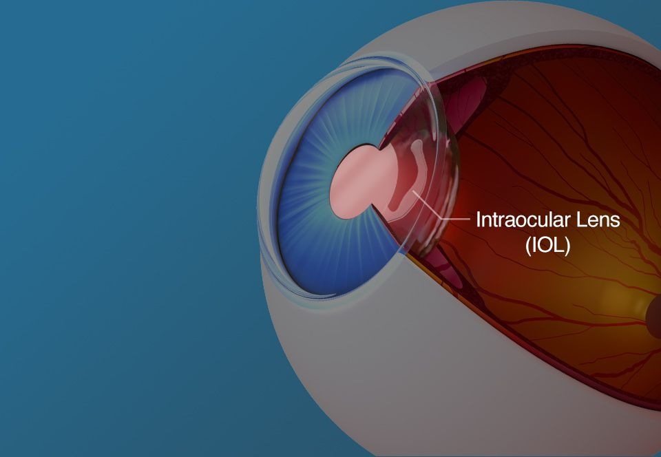 Multifocal intraocular lenses (IOLs).