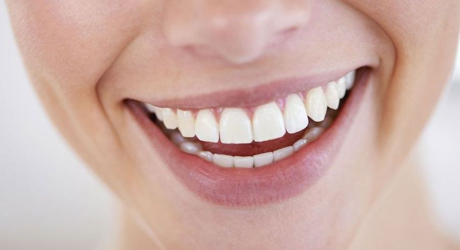 Close-up of a patient's smile.