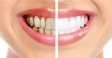 yellow and white teeth comparison