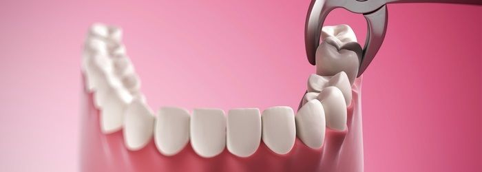 Tooth Extraction Marietta Ga Kennesaw Ga Powder Springs Ga