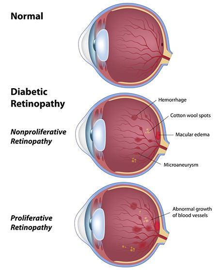 Illustration of healthy eye vs. diabetic retinopathy