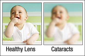 example of vision with and without cataracts