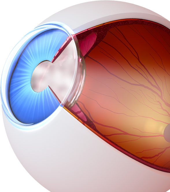 illustration of cataracts