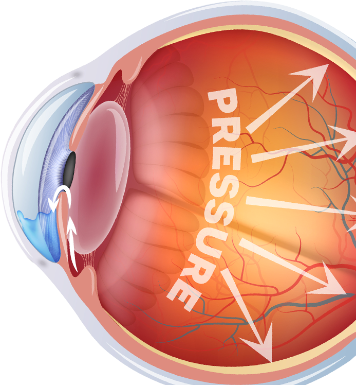 Illustration of an eye with glaucoma