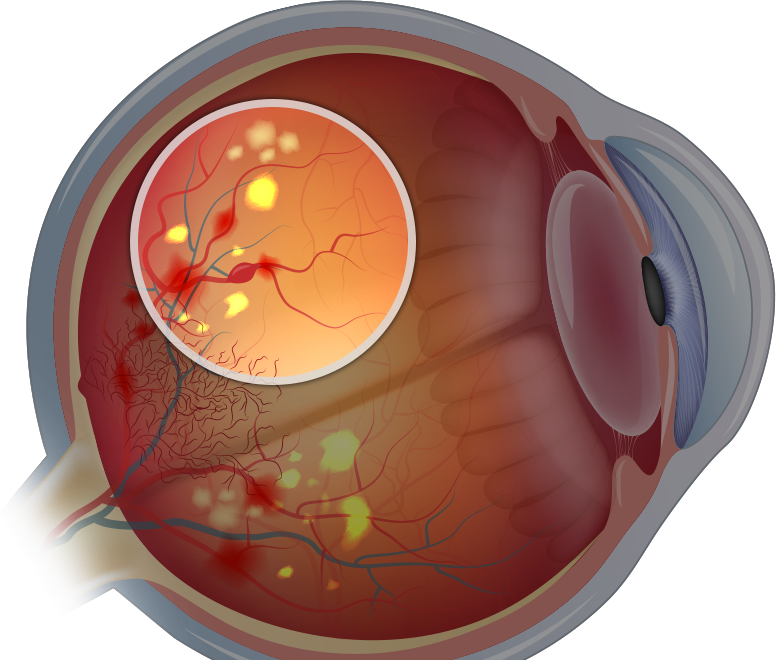 diagram of an eye with diabetic retinopathy
