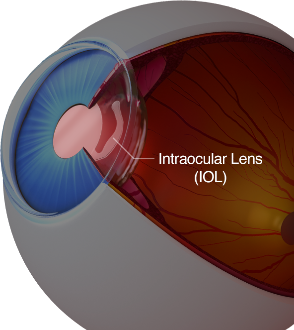 A diagram of an eye with an intraocular lens