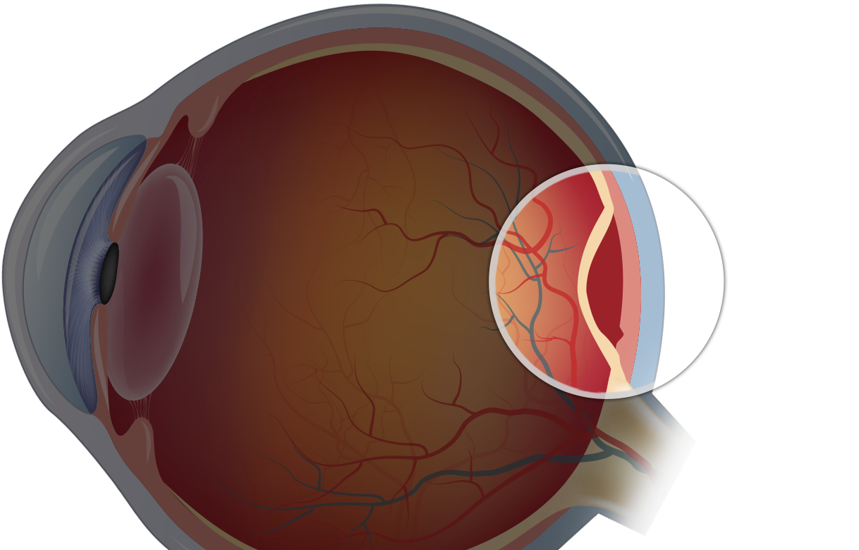 diagram of an eye with a detached retina