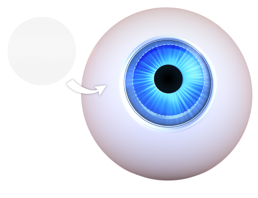 illustration of an eye and an artificial cornea