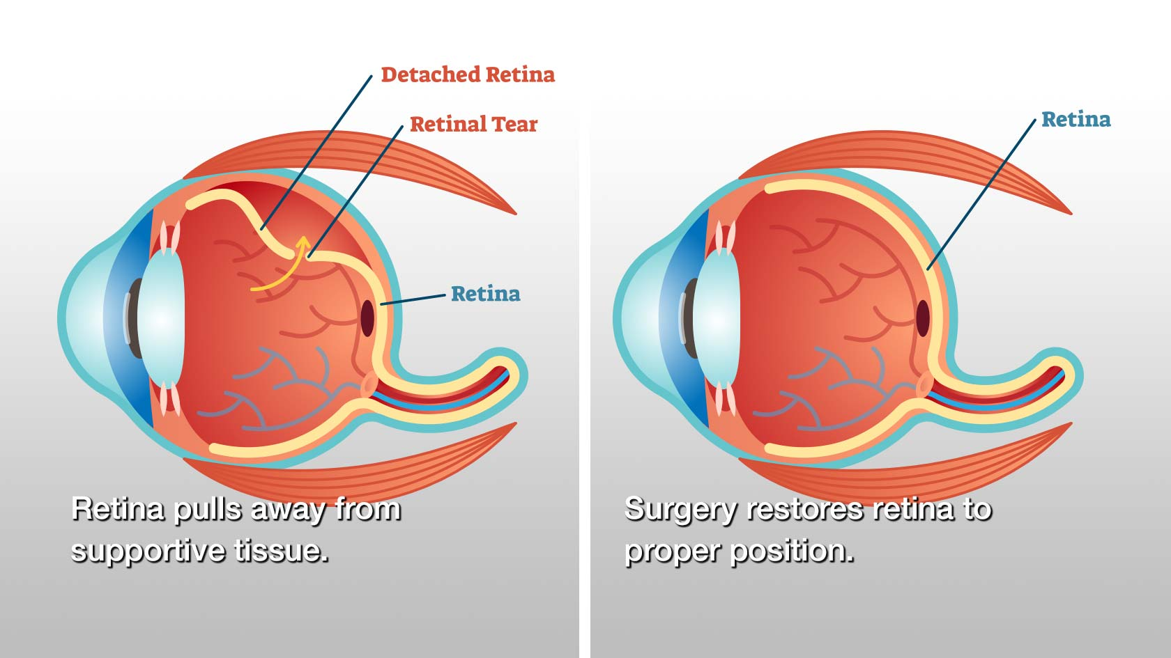 before and after retinal detachment surgery