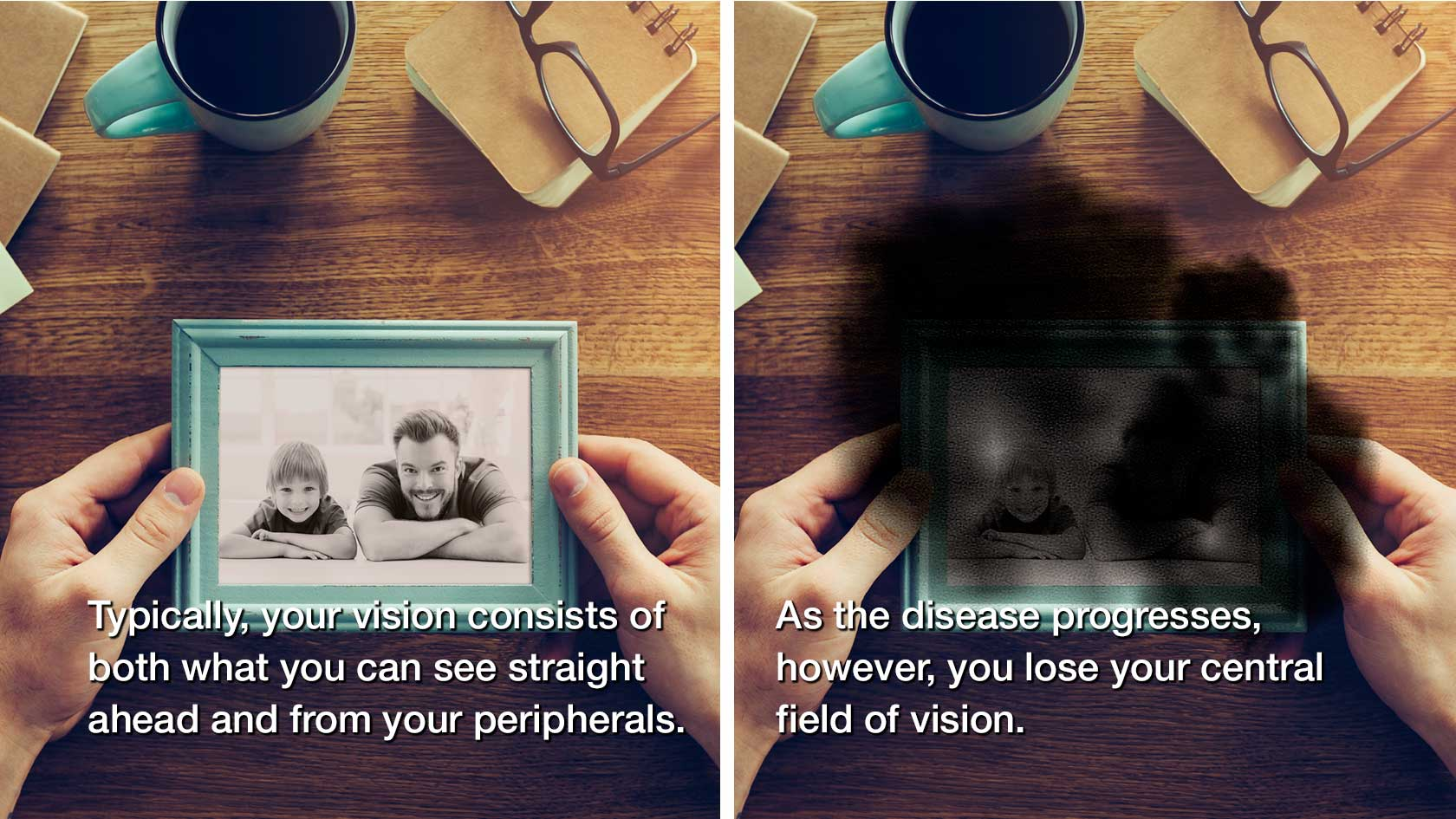 Normal vision vs. vision affected by macular degeneration