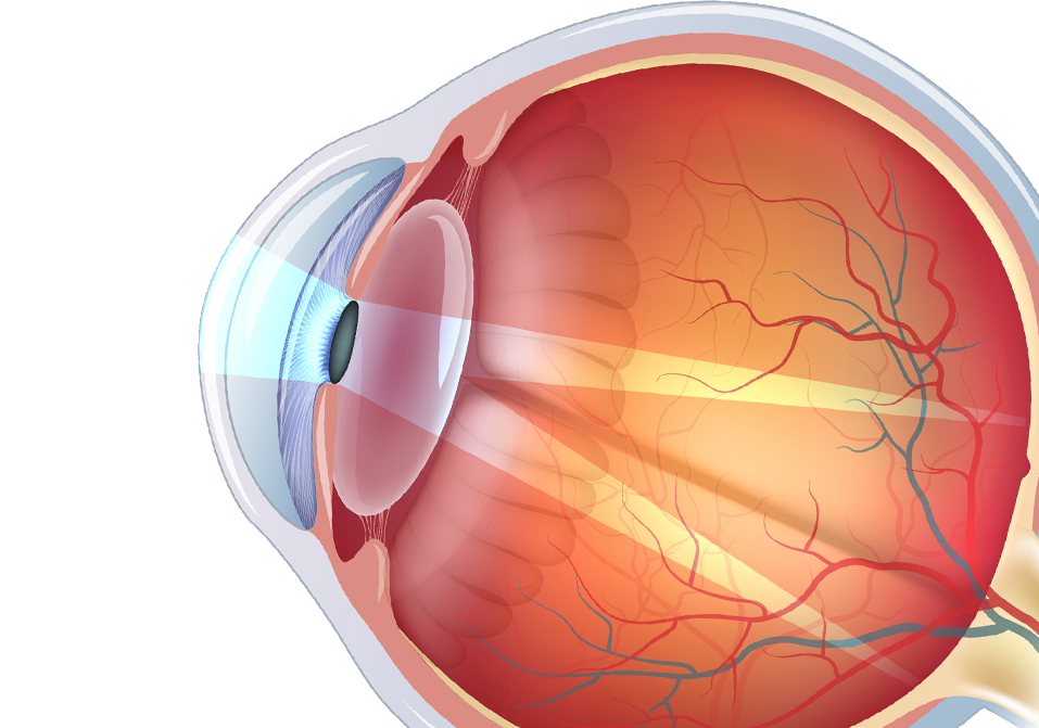 illustration of astigmatism