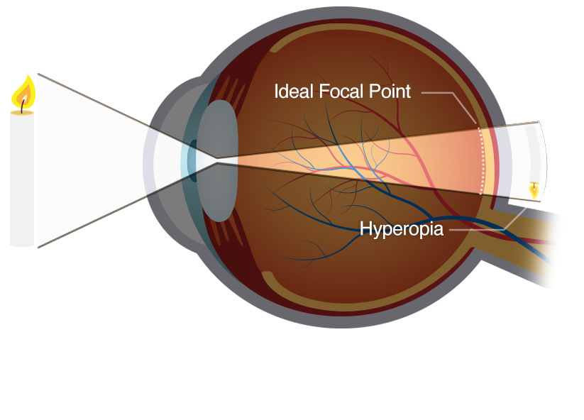 Illustration of an eye demonstrating farsightedness