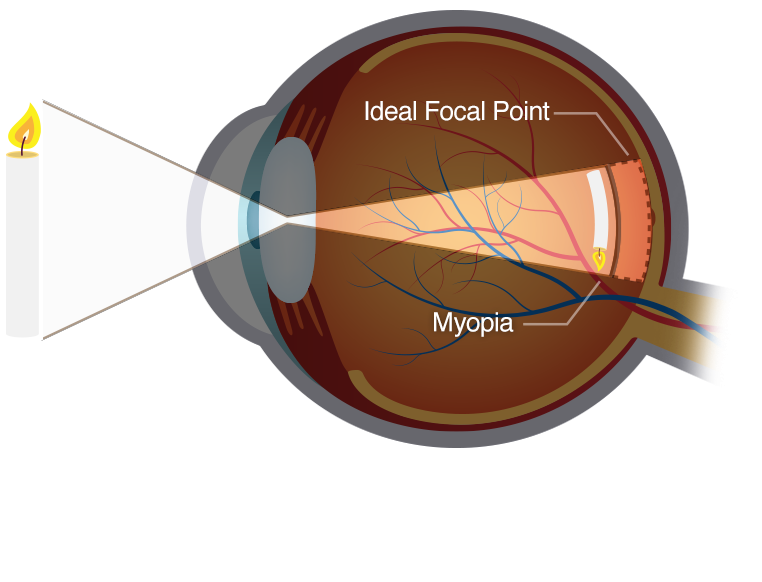Diagram of myopic eye from the side