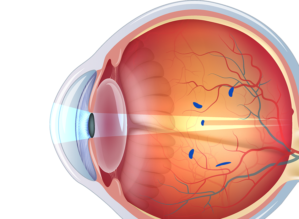Illustration of an eye with flashes and floaters