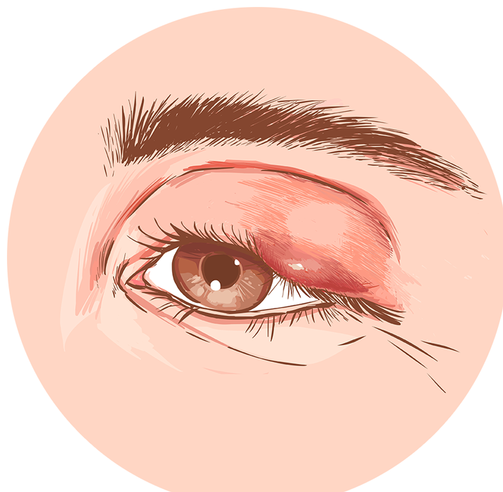 eyelid with a sty