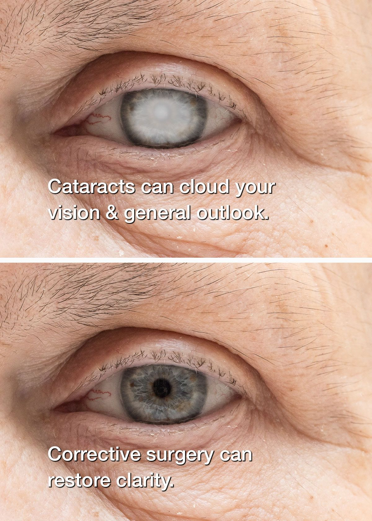 before and after cataract surgery