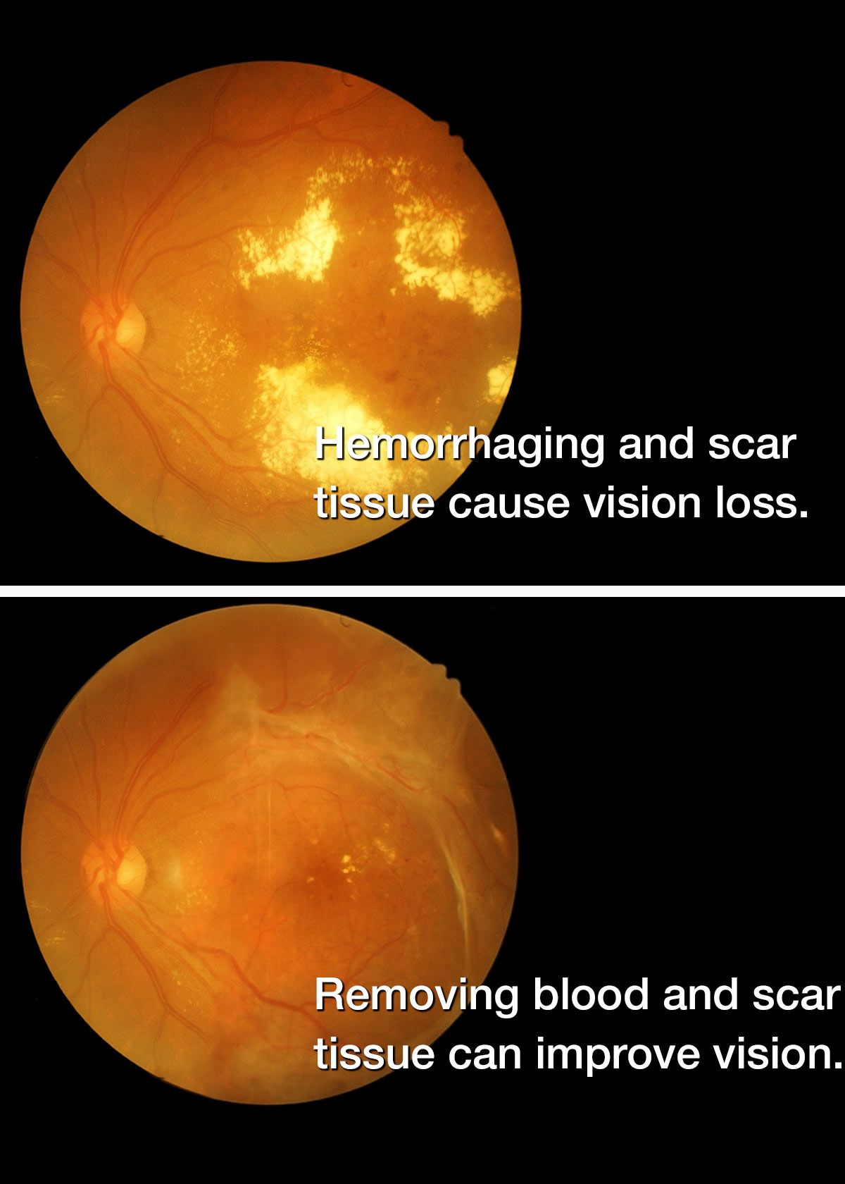 before and after diabetic retinopathy surgery