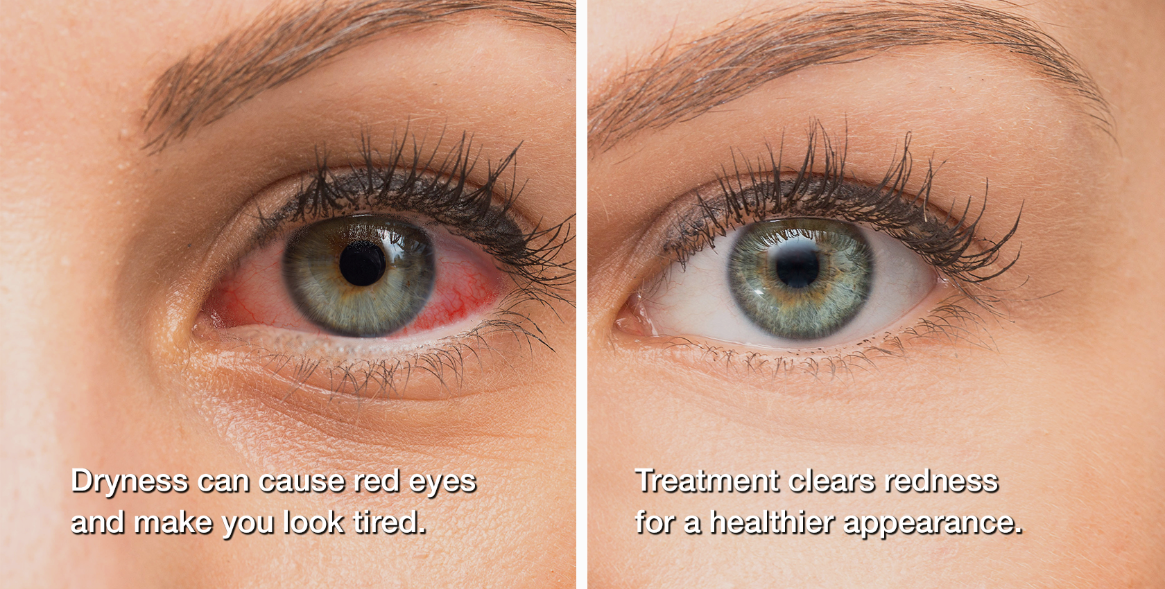 dry eye treatment before and after