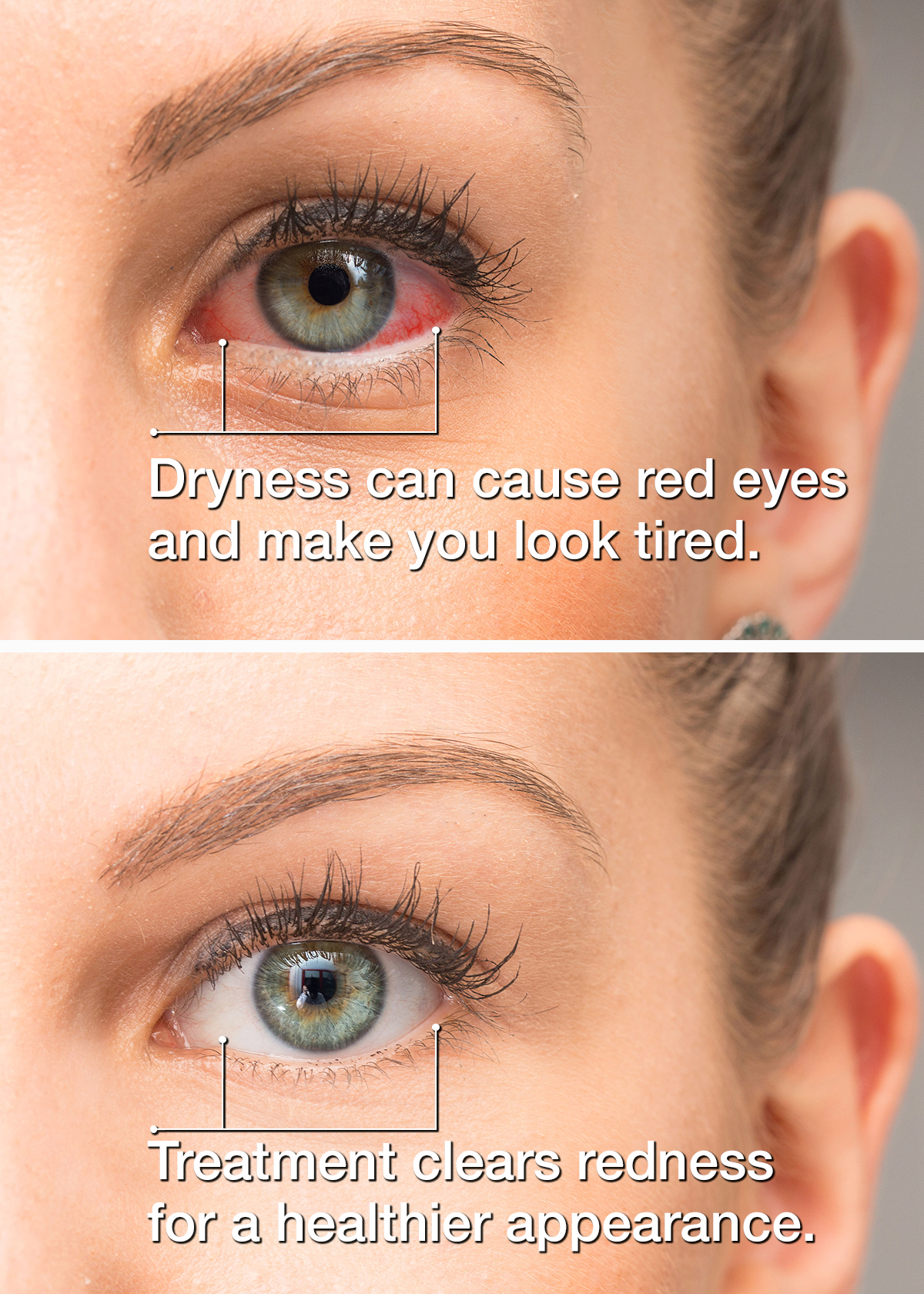 Dry Eye Treatment - Nashville, TN - Goodlettsville, TN - Dr