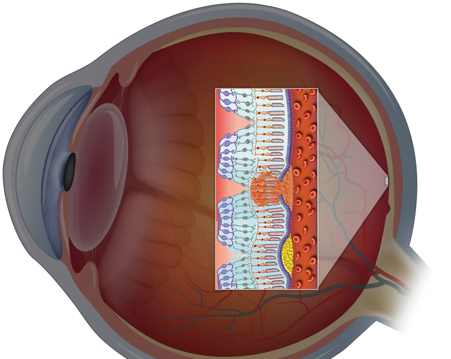 diagram of macular degeneration