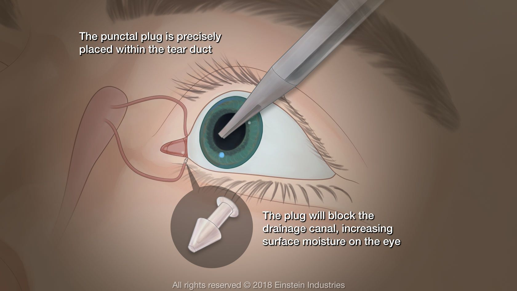 Diagram of punctal plug placement