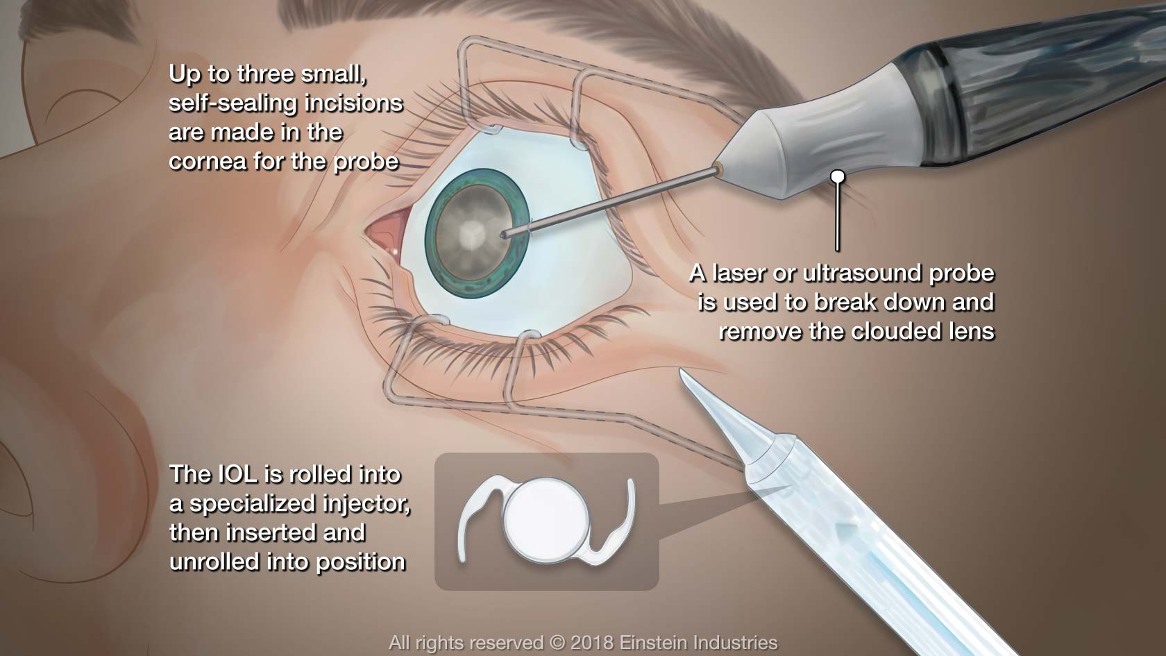 Illustration of cataract surgery