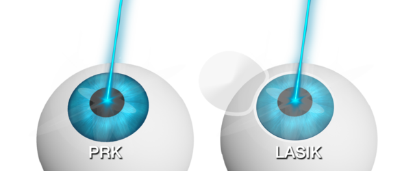 Illustration of PRK vs. LASIK