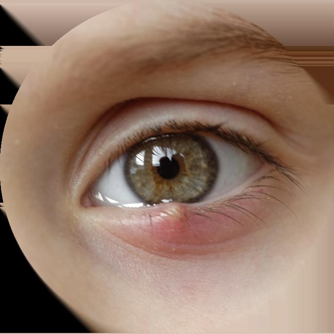 An eye with a stye