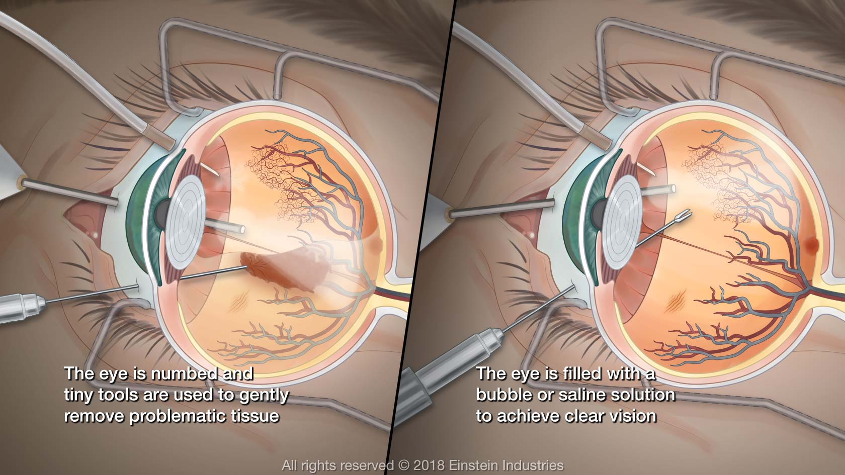 illustration of vitrectomy