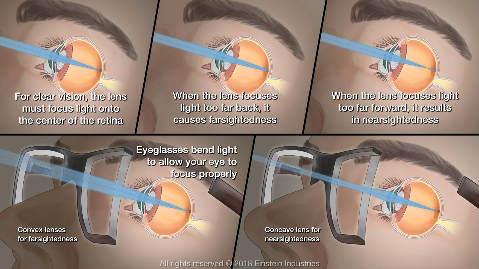 Illustration showing how glasses work