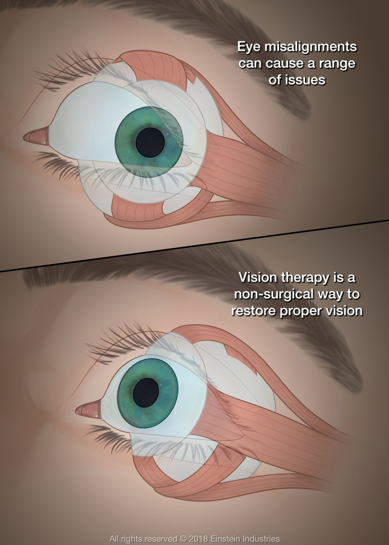 vision therapy illustration