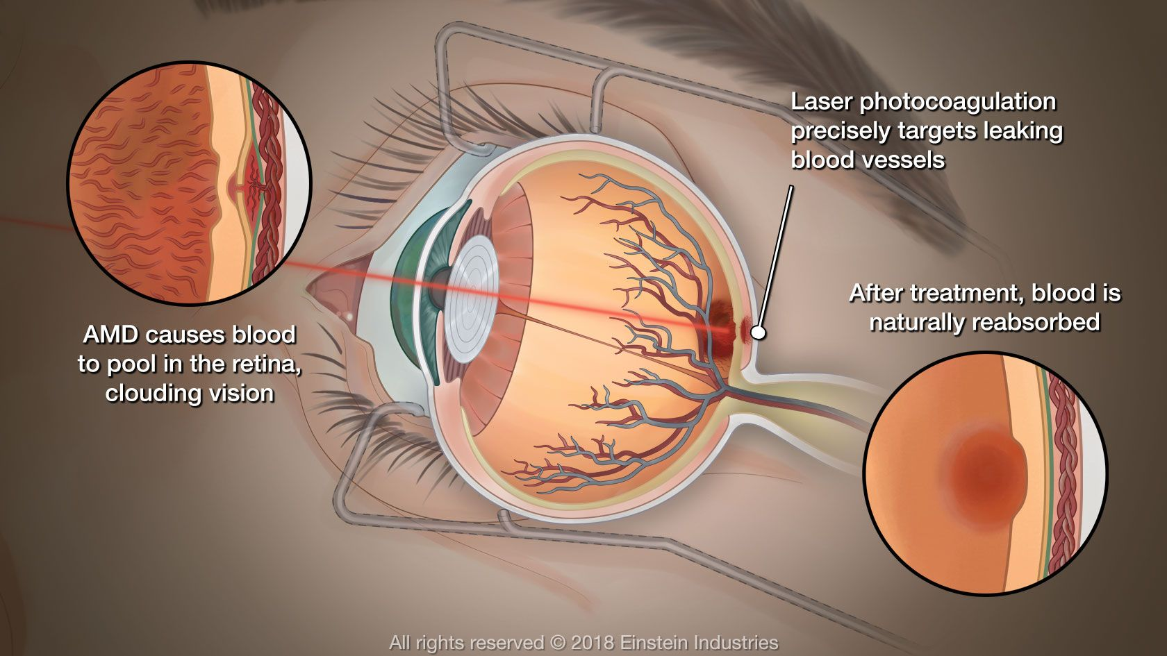 Illustration of eye affected by AMD