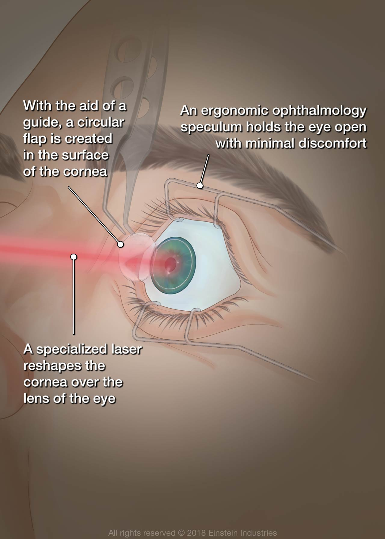 LASIK - Chicago, IL - Wicker Park Eye Center