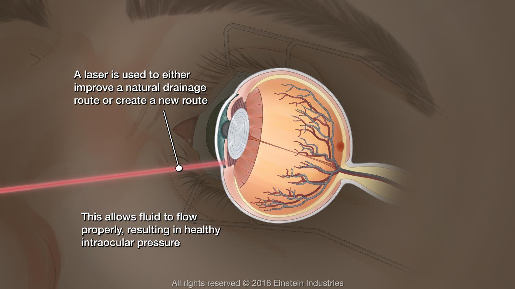 Illustration of eye undergoing laser glaucoma surgery