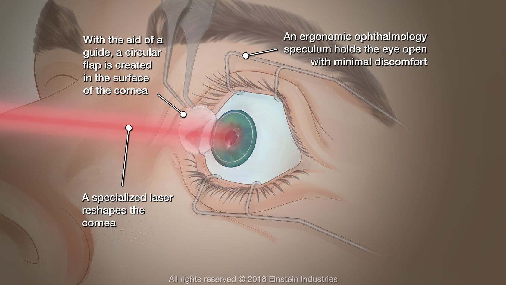 Diagram of LASIK surgery
