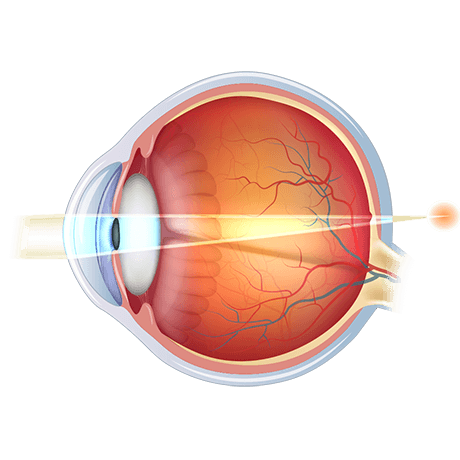 Diagram of hyperopic eye
