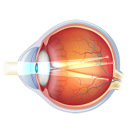 Diagram of eye with astigmatism