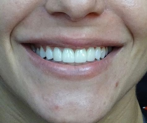 smile after dental crowns