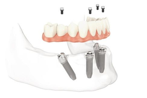 Illustration of dental implant posts in the jaw, denture, and abutments