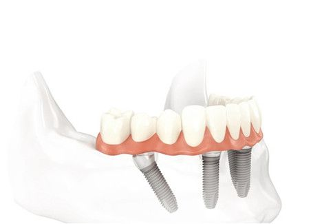 Illustration of denture being attached to dental implant posts in the lower jaw
