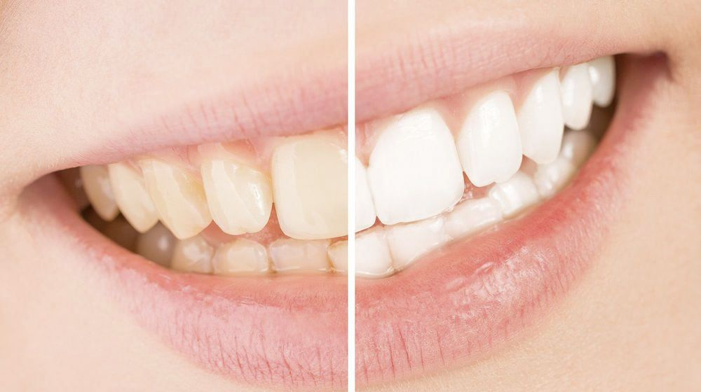 Before and after images of a teeth whitening patient.