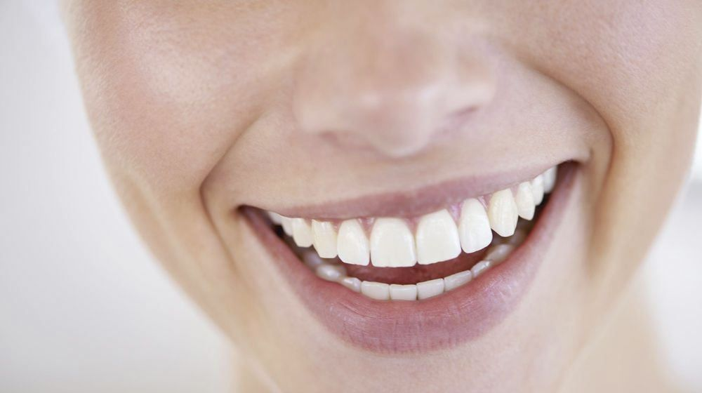 Close-up of a woman's smile after cosmetic dentistry treatment.