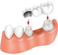 A dental bridge is placed over gently reshaped teeth.