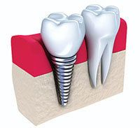 An implant-supported dental crown placed in the jawbone.