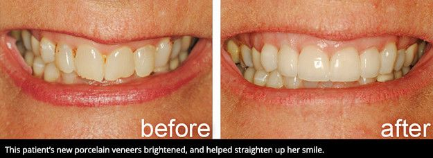 A smile before veneers and after veneers.