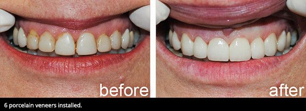 A smile before porcelain veneers and after porcelain veneers.