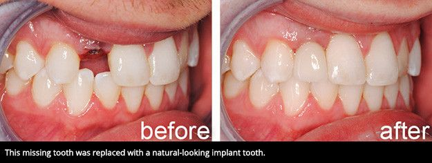 A smile before and receiving a dental implant.