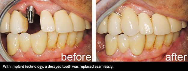 A smile before and after dental implant treatment.