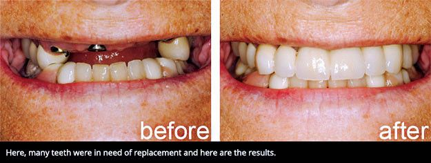 A smile affected by many missing teeth next to a smile with several dental implant-supported restorations.